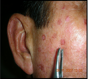 Avail Of Professional Blemish Removal Product at a Price of $100 Only